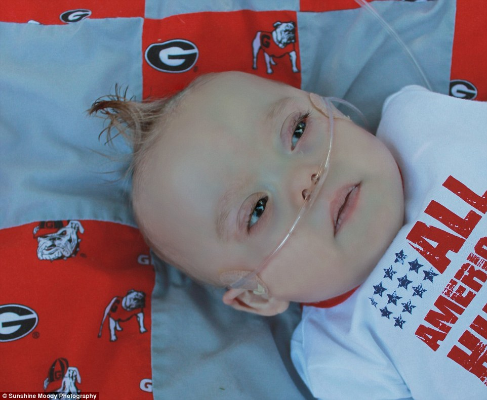 353FC19200000578 3640138 A difficult start Kolbie had his first open heart surgery when h a 19 1465877241600