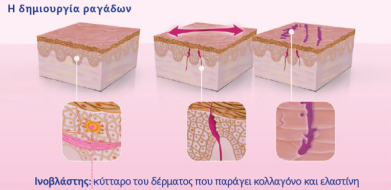 EPIPLEONRAGADES