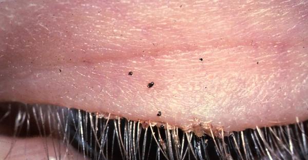 lice eye