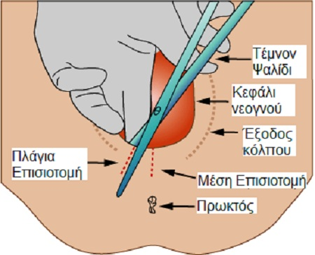 Medio lateral episiotomy