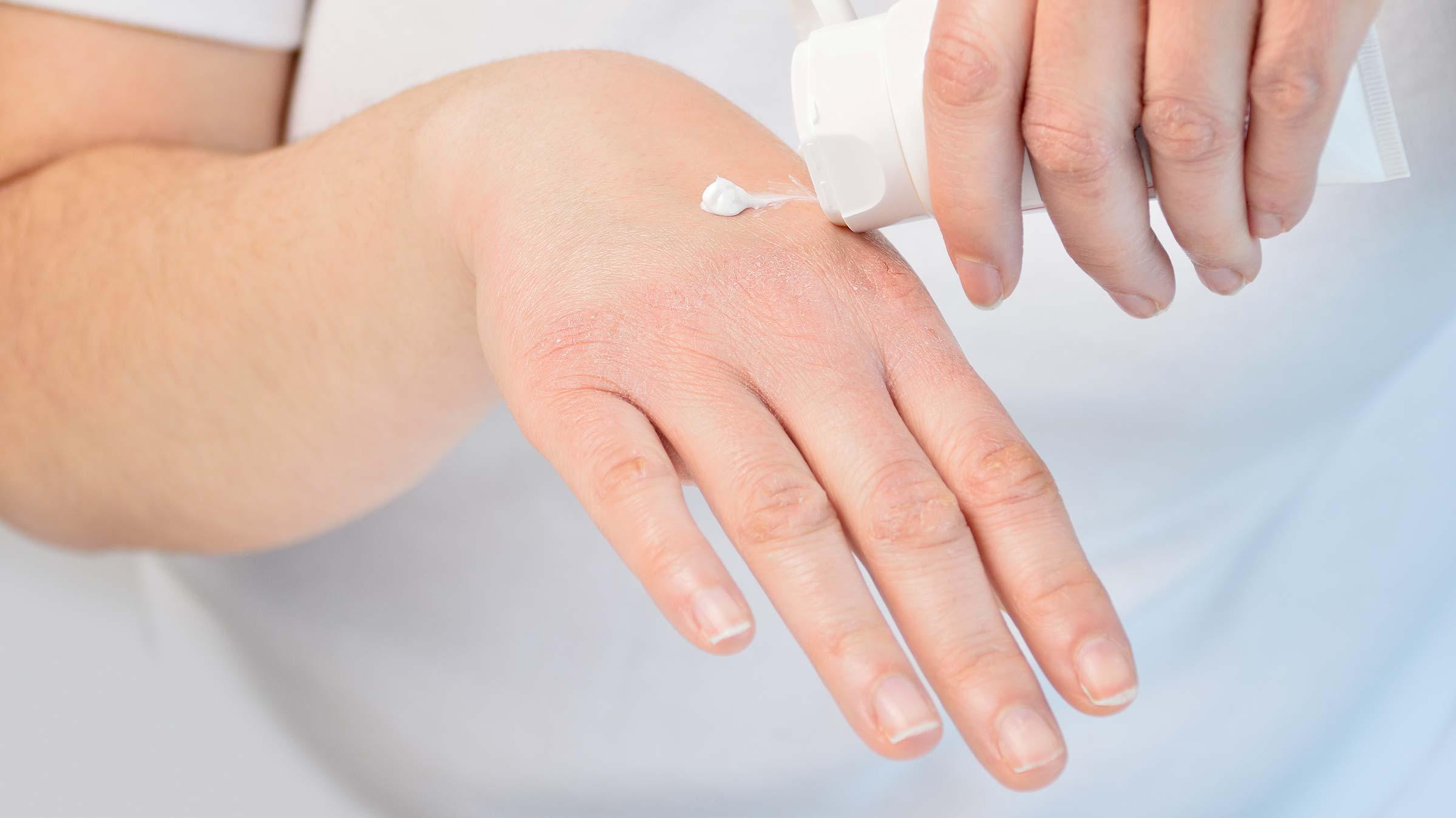atopiki dermatitida 3