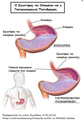 stomaxi egimosini1