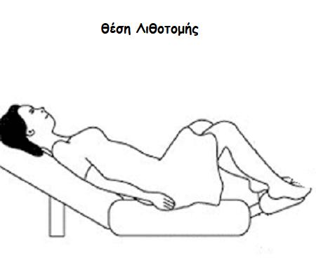 lithotomi