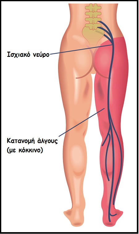 endomitriosi algous