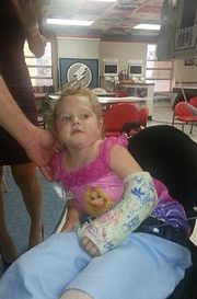 Απίστευτη ιστορία: Δίχρονη ξαναπερπάτησε μετά από ακρωτηριασμό που της προκάλεσε ο πατέρας της κατά λάθος!