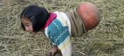 Η συγκλονιστική ιστορία ενός κοριτσιού που έζησε για επτά χρόνια με μια μπάλα του μπάσκετ τοποθετημένη στη λεκάνη της!
