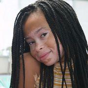 Γνωρίστε τη 13χρονη με λεύκη που κάνει καριέρα στο μόντελινγκ (pics)