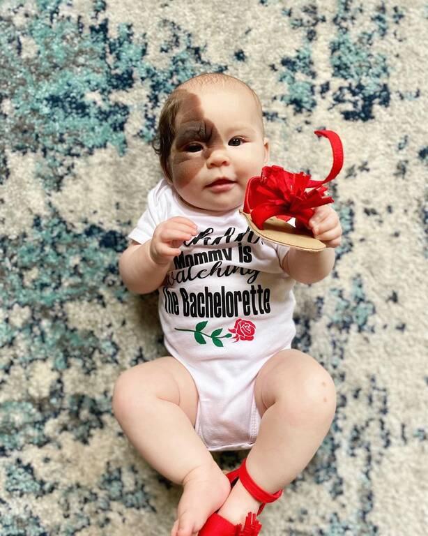 «Συγγενής Μελανοκυτταρικός Σπίλος» (CMN) - Η μικρή που τρέλανε το Instagram