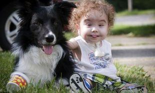 Τρισδιάστατη εκτύπωση ζωτικού οργάνου, έσωσε τη ζωή ενός μωρού!