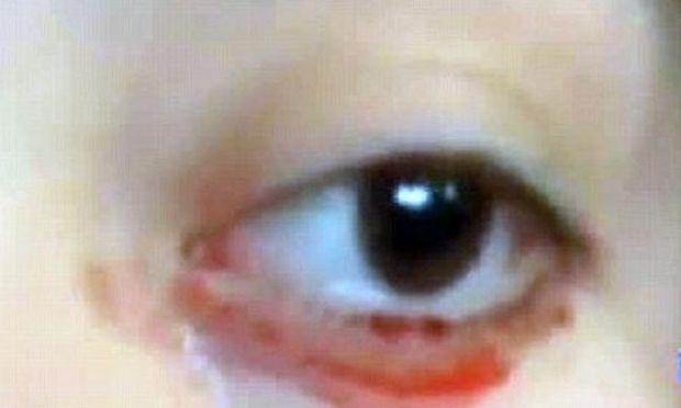 Το κορίτσι που δακρύζει… αίμα!