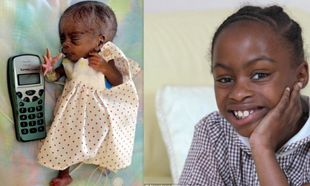 Είχε 1% πιθανότητα να ζήσει και σήμερα γιορτάζει τα 10α γενέθλιά της