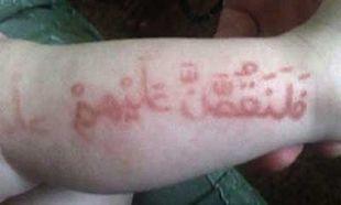 Μητέρα εκμεταλλεύεται την αλλεργία του βρέφους της, παρουσιάζοντάς το ως «Προφήτη» (εικόνες)