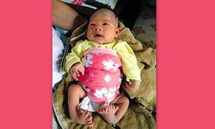 Μωρό στην Κίνα γεννήθηκε με 16 δάχτυλα στα πόδια!