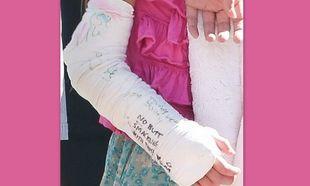 Ποιο διάσημο κοριτσάκι έσπασε το χεράκι του;