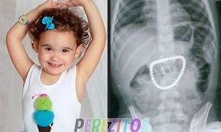 Τρίχρονο κοριτσάκι έφαγε κατά λάθος 37 μαγνητάκια!