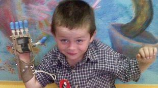 Δύο άγνωστοι δώρισαν σε 5χρονο αγοράκι το προσθετικό μέλος που χρειαζόταν! (εικόνες)