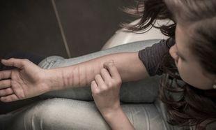 Διαστάσεις επιδημίας παίρνει ο αυτοτραυματισμός των εφήβων. Ολα όσα πρέπει να γνωρίζουμε