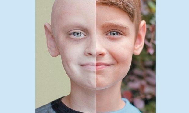 Η ζωή κέρδισε! Η ιστορία ενός αγοριού που δίνει ελπίδα στα άρρωστα παιδιά (εικόνα)