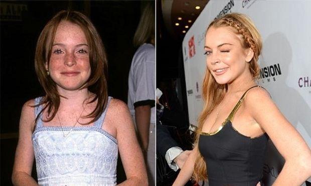Απίστευτες φωτογραφίες διασημοτήτων του Χόλιγουντ πριν και μετά την εφηβεία τους!