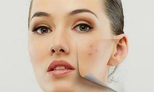 Ιδανική σπιτική μάσκα για δέρμα με τάση ακμής!