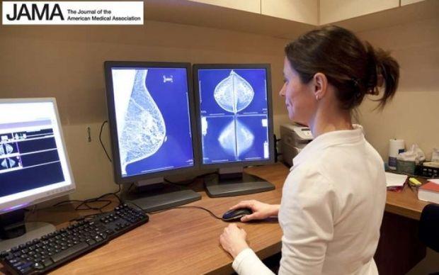 Πιο αποτελεσματική η τρισδιάστατη μαστογραφία στον έγκαιρο εντοπισμό του καρκίνου