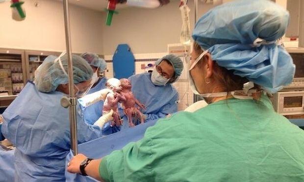 Τα μωρά που γεννήθηκαν χέρι-χέρι, 6 μήνες μετά και ακόμη είναι αχώριστα! (βίντεο)