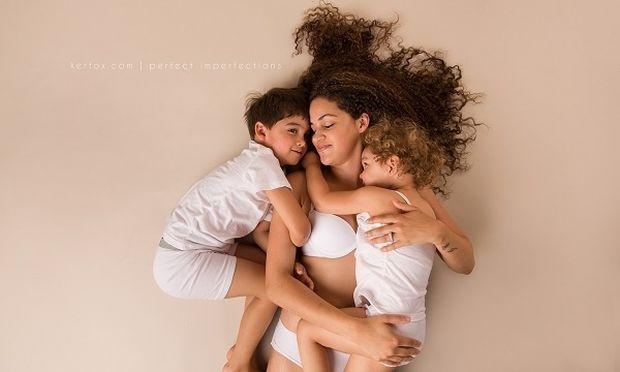 Αγαπήστε τις ατέλειές σας! 15 μαμάδες αποδεικνύουν πόσο όμορφες είναι οι ατέλειες του γυναικείου σώματος! (εικόνες)