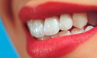 Σπιτική λεύκανση: Έτσι θα κάνεις τα δόντια σου να αστράψουν!