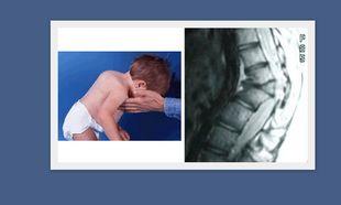 Νόσος Scheuermann: Τι είναι και πότε εμφανίζεται στα παιδιά