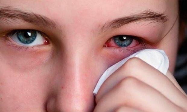 Κριθαράκι στο μάτι: Δείτε πώς μπορείτε να απαλλαγείτε από αυτό μέσα σε ένα 24ωρο!