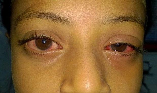 Όταν το μάτι του παιδιού είναι κόκκινο ή ροζ. Τι συμβαίνει και πώς μπορούμε να το αντιμετωπίσουμε!