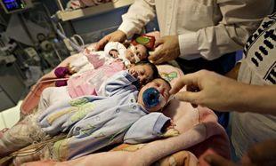 Σιαμαία κοριτσάκια διαχωρίστηκαν 8 ημέρες μετά τη γέννησή τους