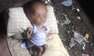 Ανέλαβε να φροντίσει ένα άρρωστο μωρό καθώς η μητέρα του αδιαφορούσε για τη ζωή του. Δείτε την εξέλιξή του