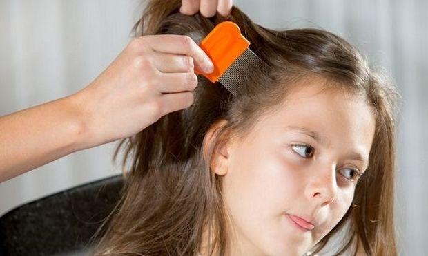 Ψείρες και κόνιδες: Πώς θα τις αντιμετωπίσετε αποτελεσματικά