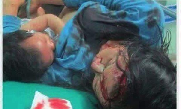 Η φωτογραφία μιας τραυματισμένης μαμάς που θηλάζει το μωρό της έγινε viral!