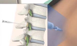 Πώς γίνεται η επισκληρίδιος αναισθησία (βίντεο)
