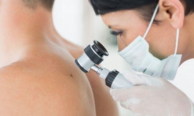 Καρκίνος δέρματος στο παιδί- Τα συμπτώματα που πρέπει να μας ανησυχήσουν
