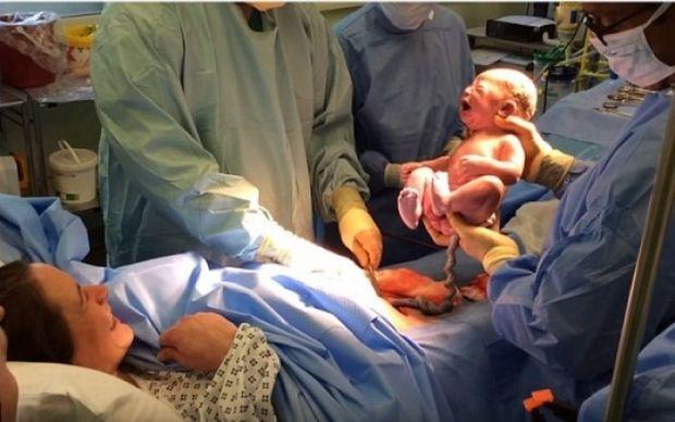 Το viral βίντεο μητέρας που γεννά με «φυσιολογική καισαρική»