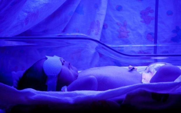 Μωρά με ίκτερο: Ποιο θανάσιμο κίνδυνο κρύβει η φωτοθεραπεία