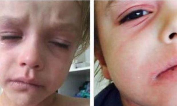 Κανείς γιατρός δεν μπορούσε να κάνει κάτι για τον πόνο του παιδιού. Τότε η μητέρα του... (βίντεο)