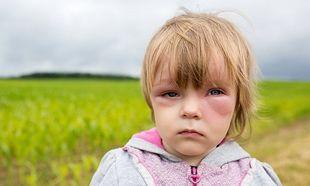 Αναφυλαξία στα παιδιά:Τι την προκαλεί, πώς αντιμετωπίζεται