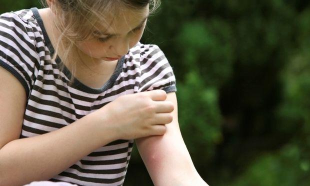 Τσιμπήματα: Απλές οδηγίες για τον «πονοκέφαλο» του καλοκαιριού