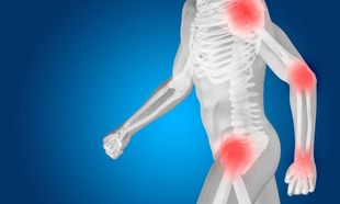 Τέσσερις συνήθειες που ανοίγουν τον δρόμο στην οστεοπόρωση