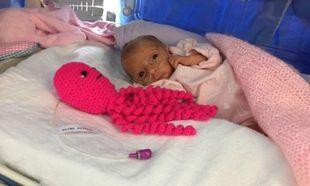 Πώς ένα πλεχτό χταποδάκι μπορεί να βοηθήσει τα πρόωρα μωράκια να επιβιώσουν