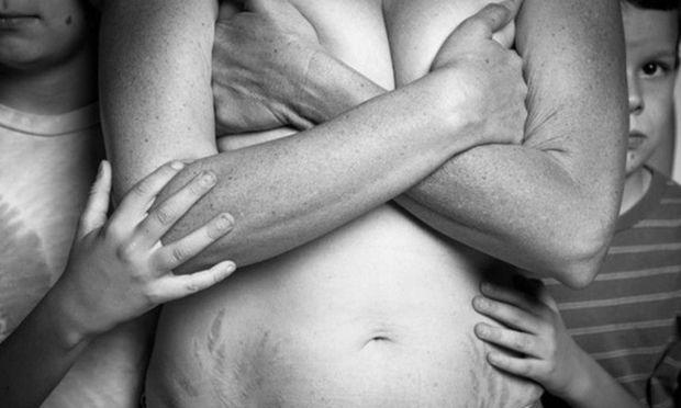Το μεγαλείο της μητρότητας μέσα από φωτογραφίες που δείχνουν γυναικείο σώμα μετά τον τοκετό (pics)