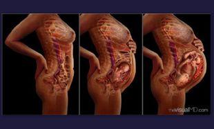 Πώς αλλάζει η μήτρα στην εγκυμοσύνη;