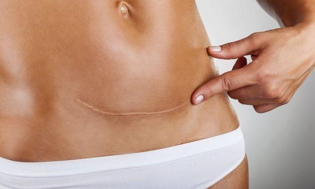 5 αλήθειες που καλούμαστε να αντιμετωπίσουμε μετά την καισαρική