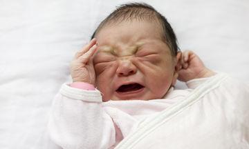 Γιατί τα νεογέννητα μελανιάζουν σε διάφορα σημεία του σώματός τους;