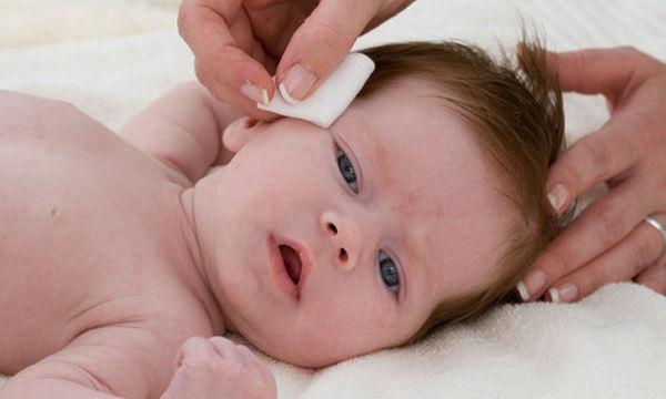 Το μωρό έχει τσίμπλες: Πού οφείλεται και τι μπορείτε να κάνετε