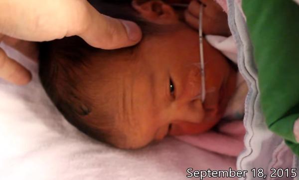 Ένα συγκινητικό βίντεο: Οι πρώτες 365 μέρες ενός πρόωρου μωρού μέσα σε 365 δευτερόλεπτα